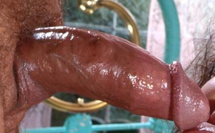 Penis vergroten, hier een verdikking