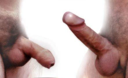 Zelfhulp bij sexuele problemen hier een slappe en stijve penis. Veel mensen hebben last van een erectie probleem.