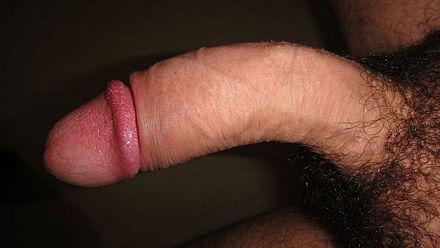 Wanneer een penis krom trekt dan kan je de ziekte van peyronie hebben
