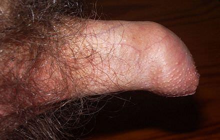 Dyspareunie, pijn bij het vrijen hier Fimosis dat is een te nauwe voorhuid die niet over de eikel heen geschoven kan worden