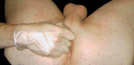Het stimuleren van de prostaat